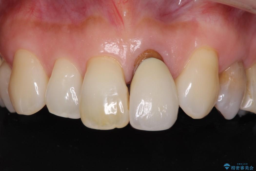 前歯のクラウンの茶色い縁を綺麗にしたい オールセラミックによる治療 ビフォー