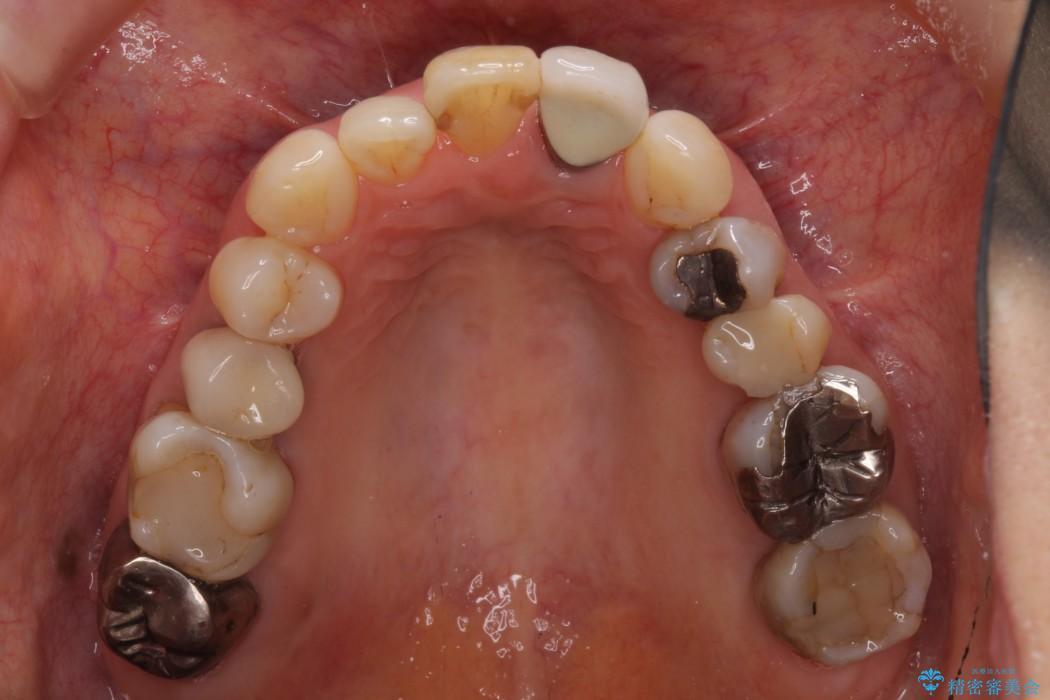 前歯のクラウンの茶色い縁を綺麗にしたい オールセラミックによる治療 治療前画像