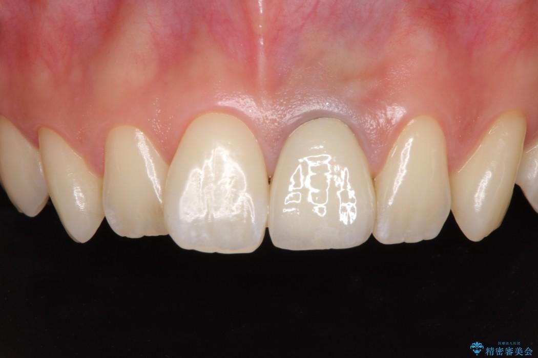 歯肉のラインが汚れている前歯 根管治療とセラミックによる審美治療 アフター