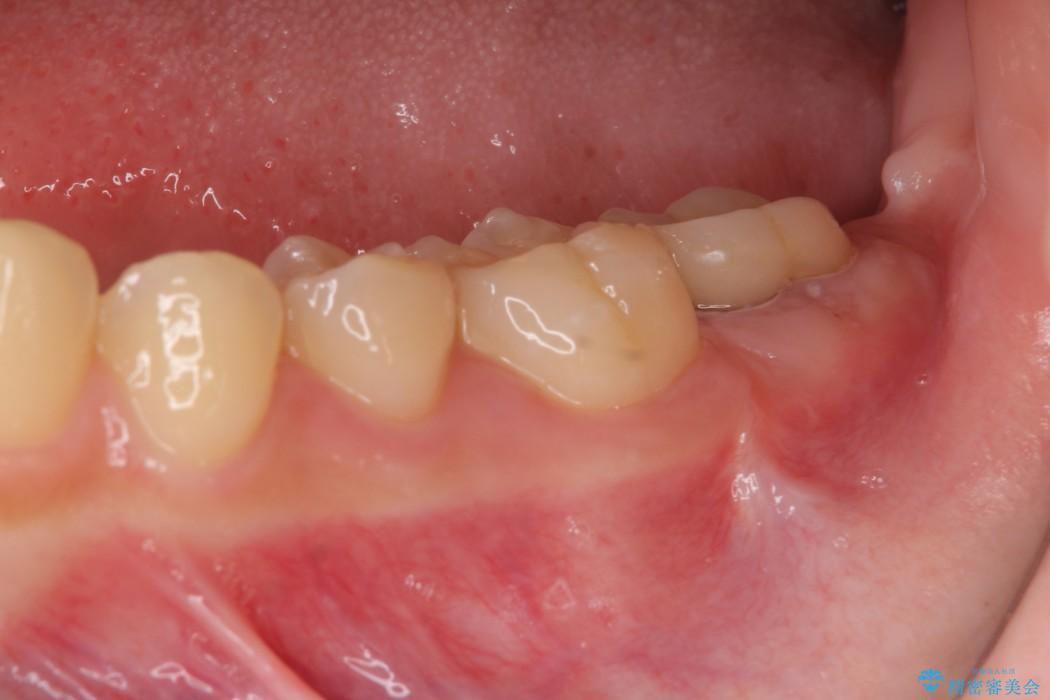 すぐ取れてしまう銀歯 短い歯を長くする処置 アフター