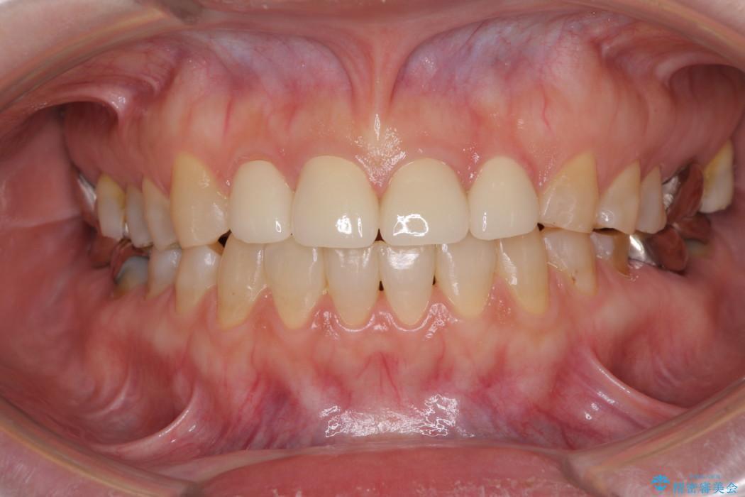 隙間の空いた前歯を治したい 部分矯正とオールセラミッククラウン アフター