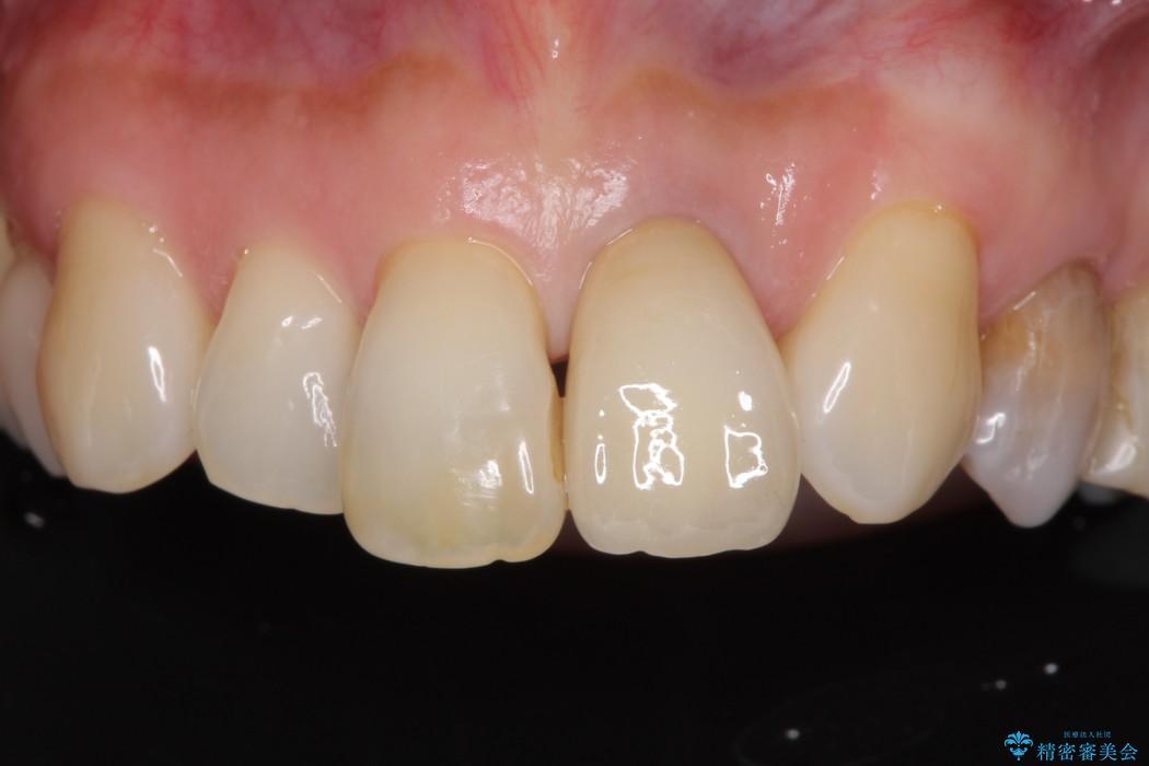 前歯のクラウンの茶色い縁を綺麗にしたい オールセラミックによる治療 アフター