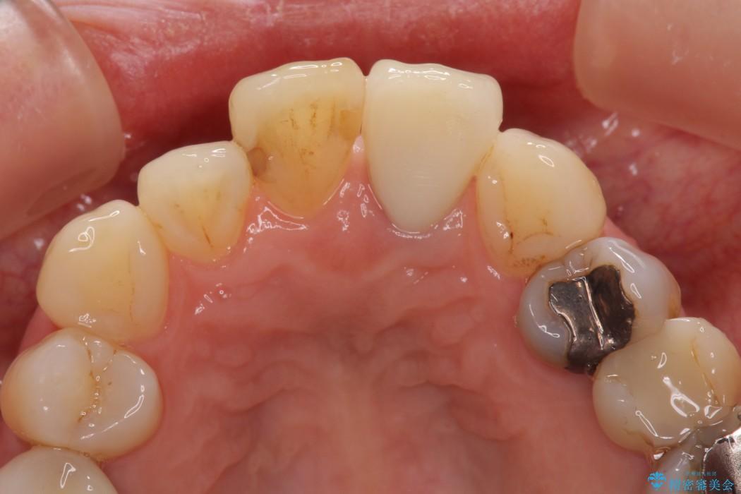 前歯のクラウンの茶色い縁を綺麗にしたい オールセラミックによる治療 治療後画像