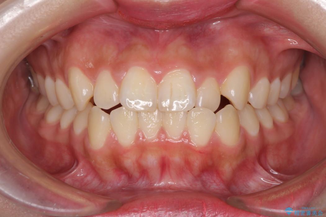 たばこで黄ばんだ歯を白くしたい レーザーホワイトニングの症例 ビフォー