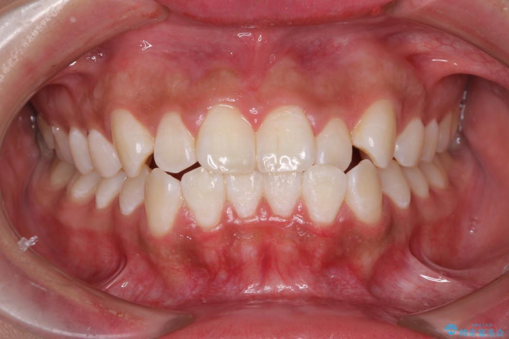 たばこで黄ばんだ歯を白くしたい レーザーホワイトニングの症例 アフター