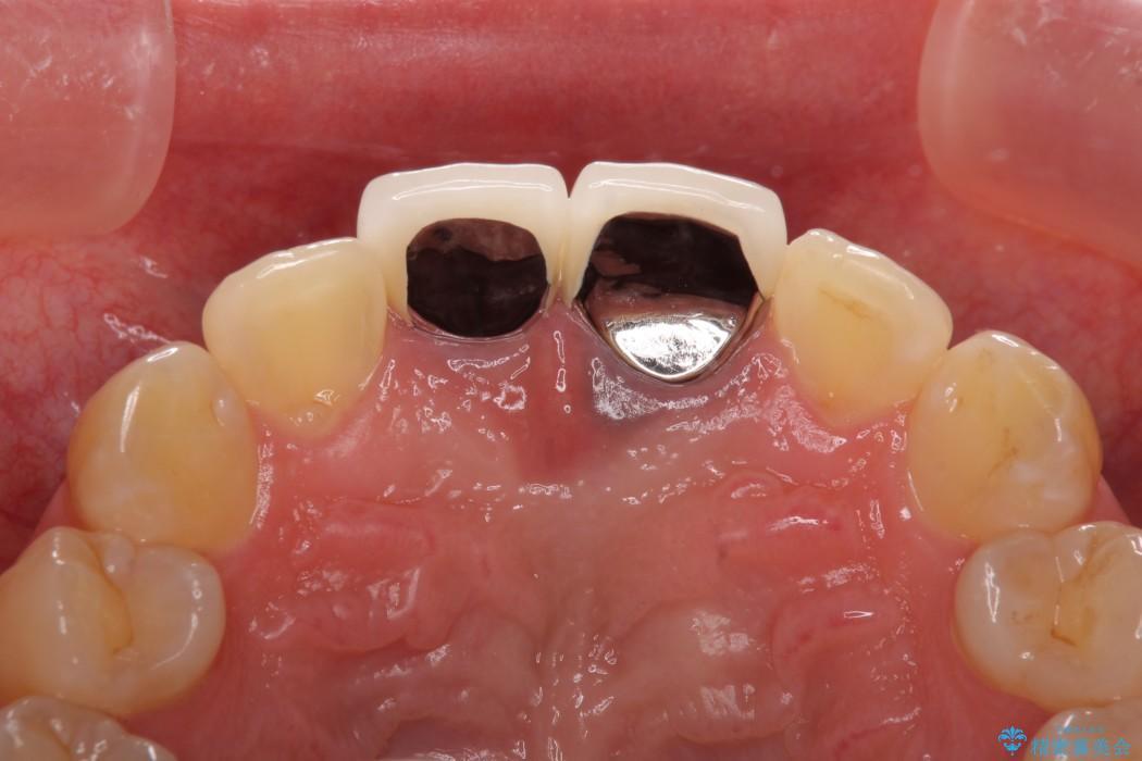 短い前歯を長くしたい 外科処置を用いた前歯のセラミック治療 治療前画像