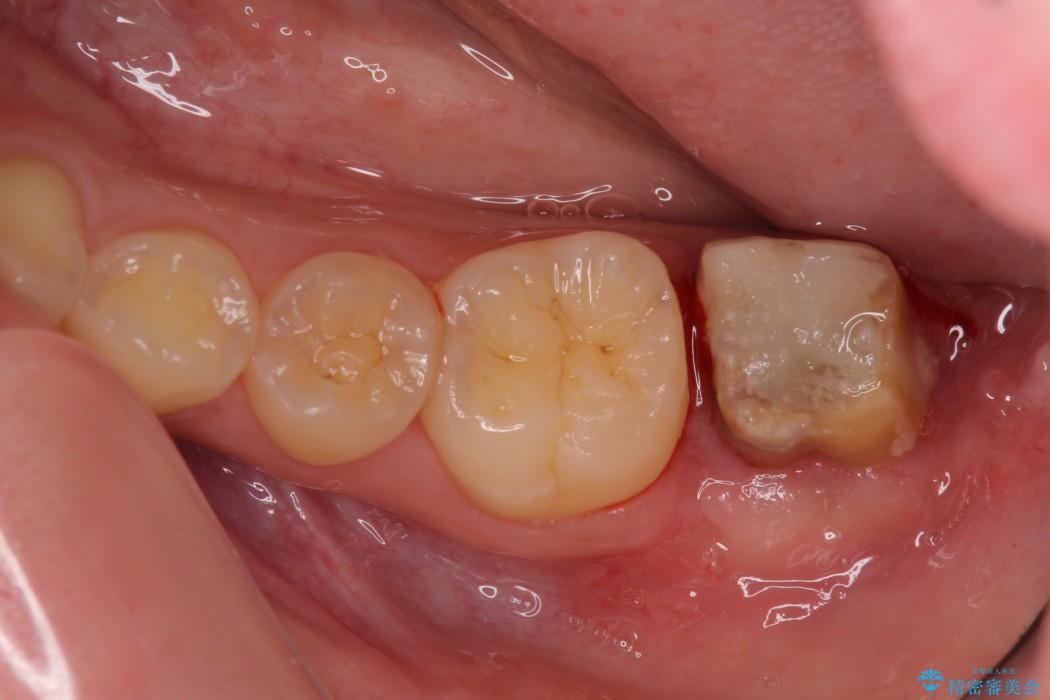 すぐ取れてしまう銀歯 短い歯を長くする処置 治療後画像