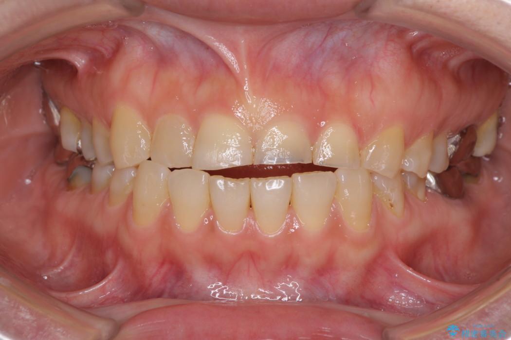 隙間の空いた前歯を治したい 部分矯正とオールセラミッククラウン ビフォー