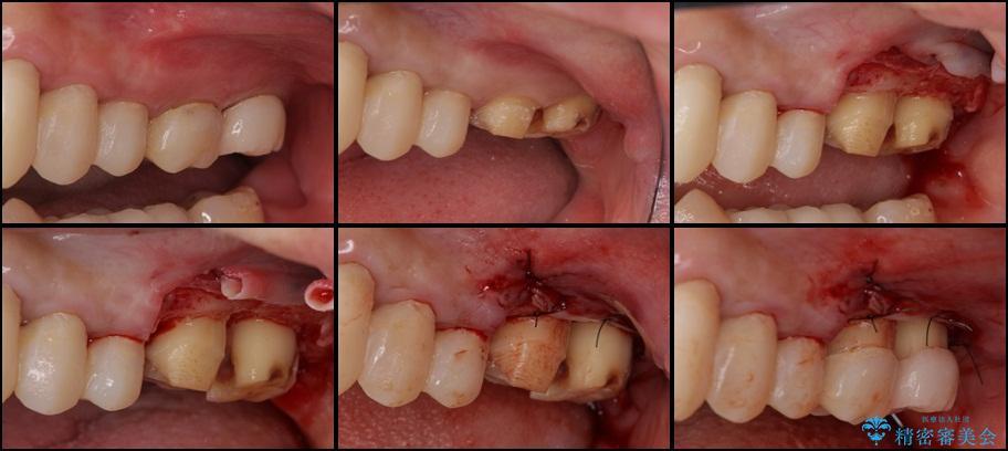歯肉の奥深くまで進行した虫歯 外科処置による適正な虫歯治療 治療後画像