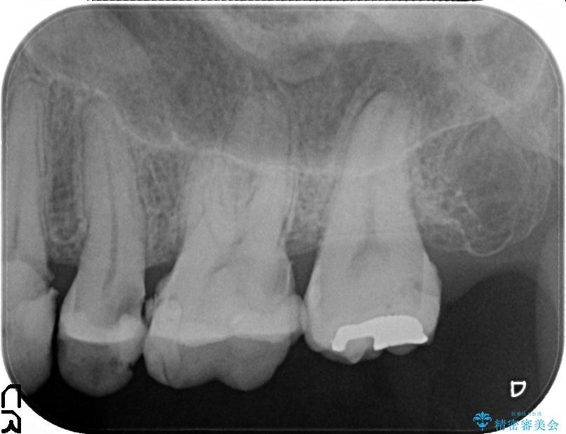 歯肉の奥深くまで進行した虫歯 外科処置による適正な虫歯治療 治療前画像