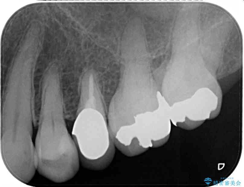 舌触りに違和感のある詰め物をインレーに 治療後画像