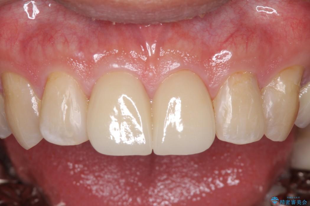 なるべく費用おさえて、綺麗な前歯にしたい 治療後画像