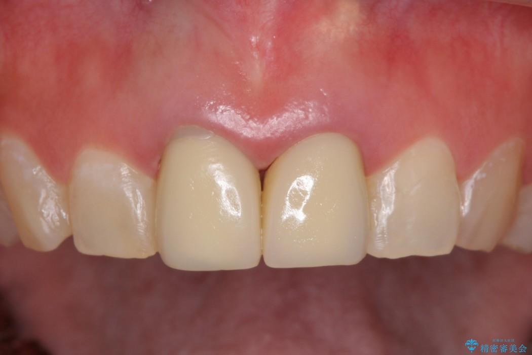 メタルフリーで白く綺麗な前歯に 治療前画像