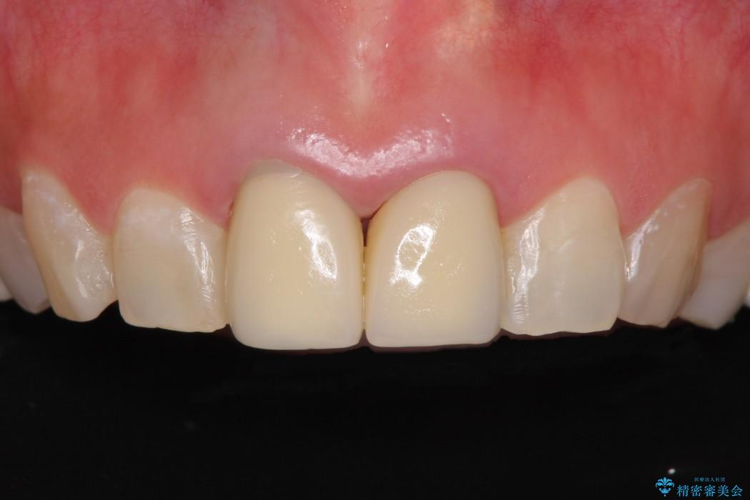 メタルフリーで白く綺麗な前歯に ビフォー