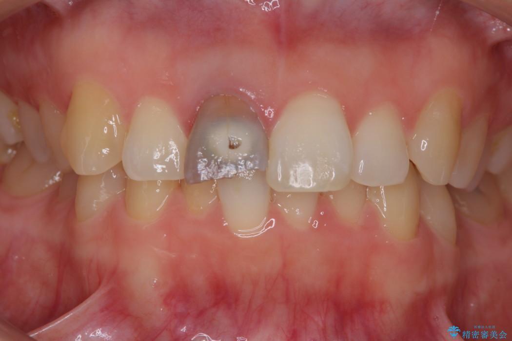 穴が空いて変色した前歯 根管治療とオールセラミッククラウン 治療前画像