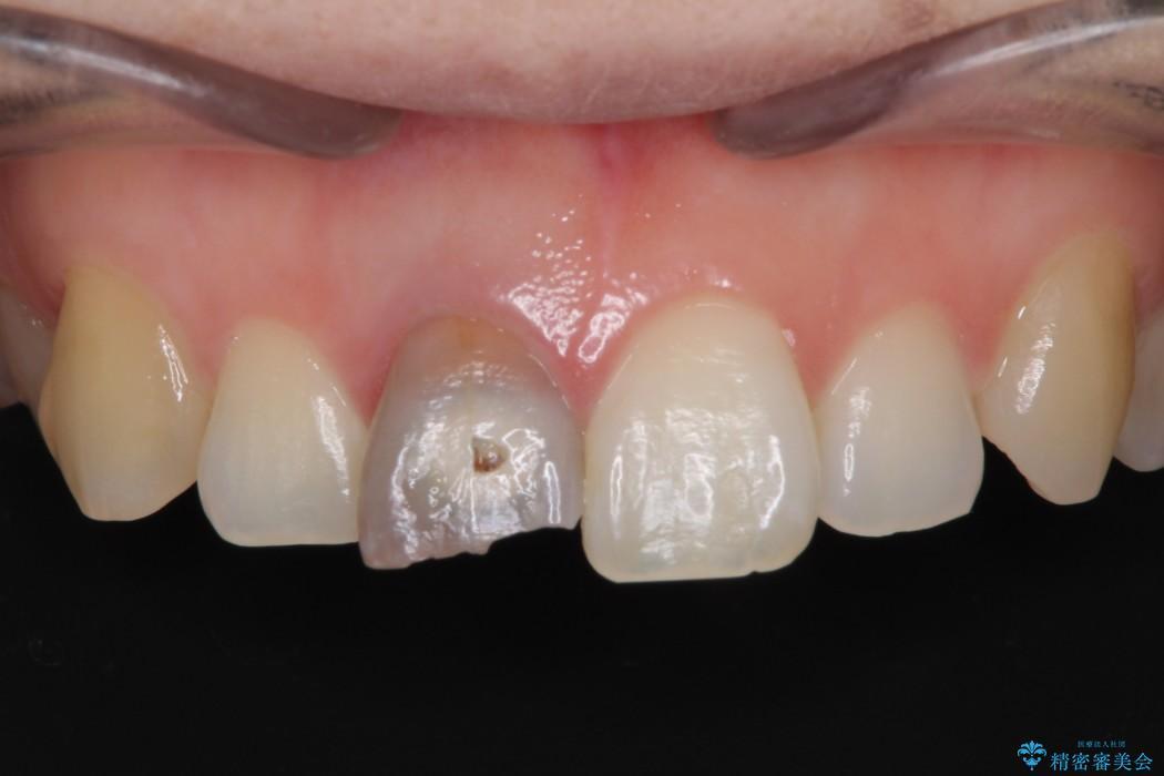 穴が空いて変色した前歯 根管治療とオールセラミッククラウン ビフォー