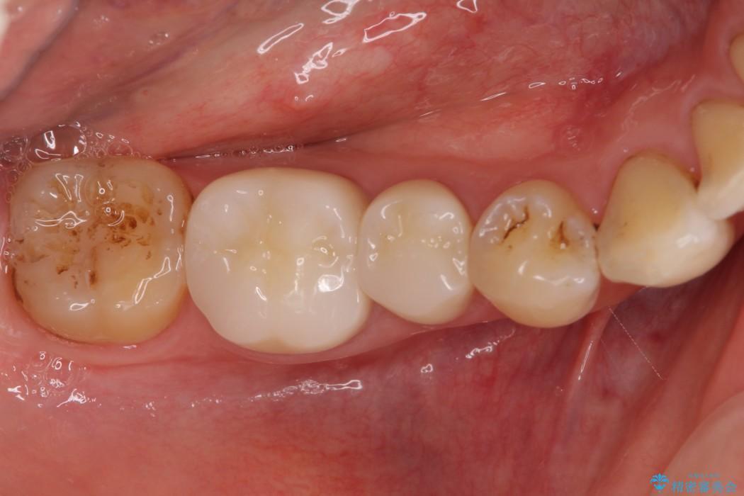 詰め物が取れた 神経の取り除かれた歯のクラウンによる補綴治療 アフター