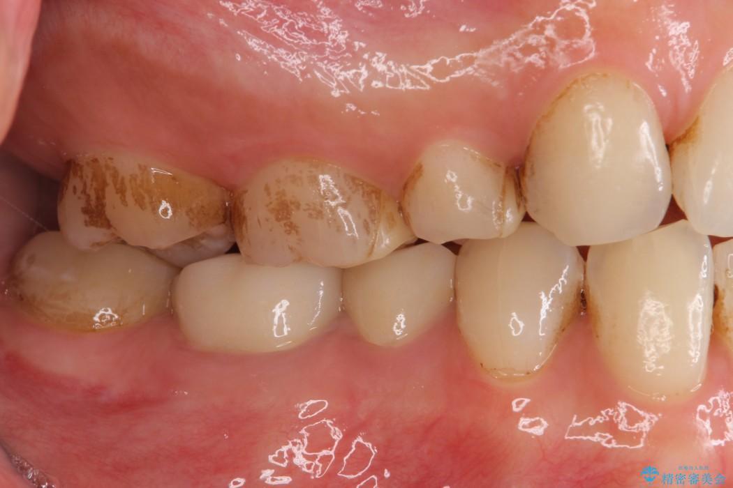 詰め物が取れた 神経の取り除かれた歯のクラウンによる補綴治療 治療後画像