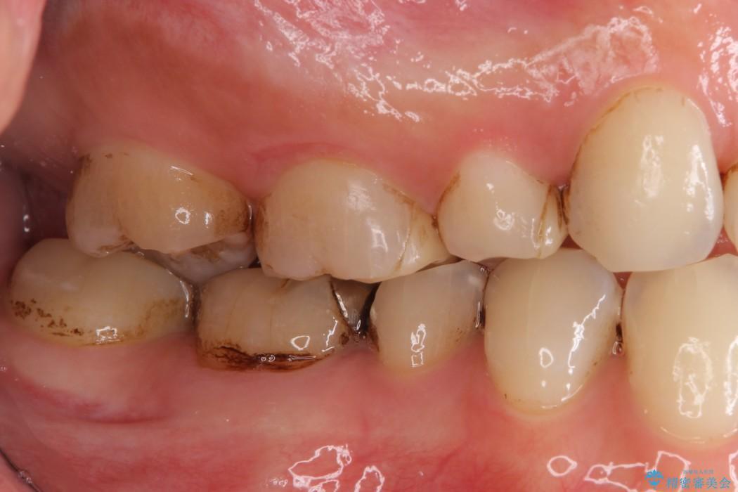詰め物が取れた 神経の取り除かれた歯のクラウンによる補綴治療 治療前画像