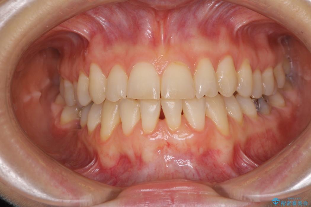 下顎前歯の歯肉退縮 歯肉移植による根面被覆 治療後画像