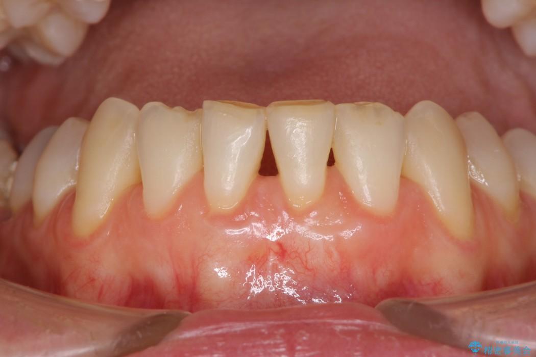 下顎前歯の歯肉退縮 歯肉移植による根面被覆 アフター
