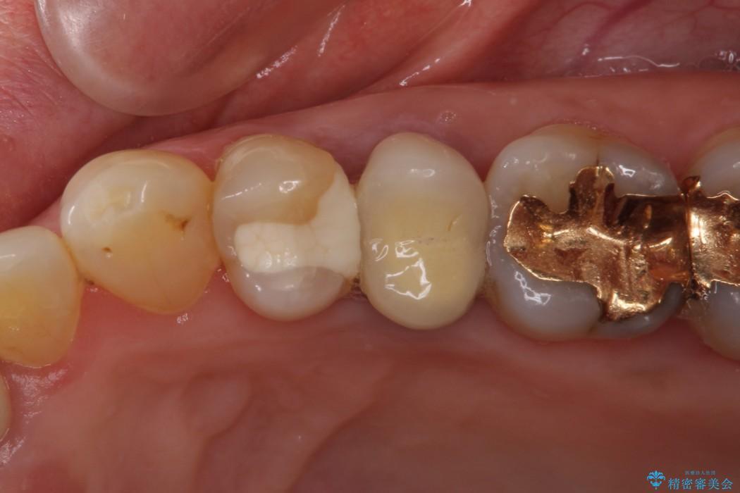 舌触りに違和感のある詰め物をインレーに 治療前画像