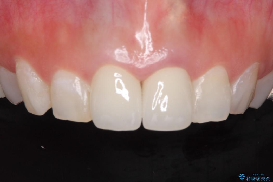 メタルフリーで白く綺麗な前歯に 治療後画像