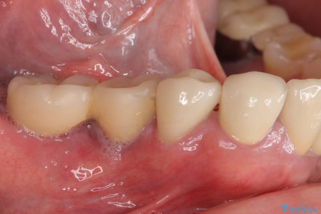 汚れがたまって気になる 歯ぐきとの境目から虫歯 アフター