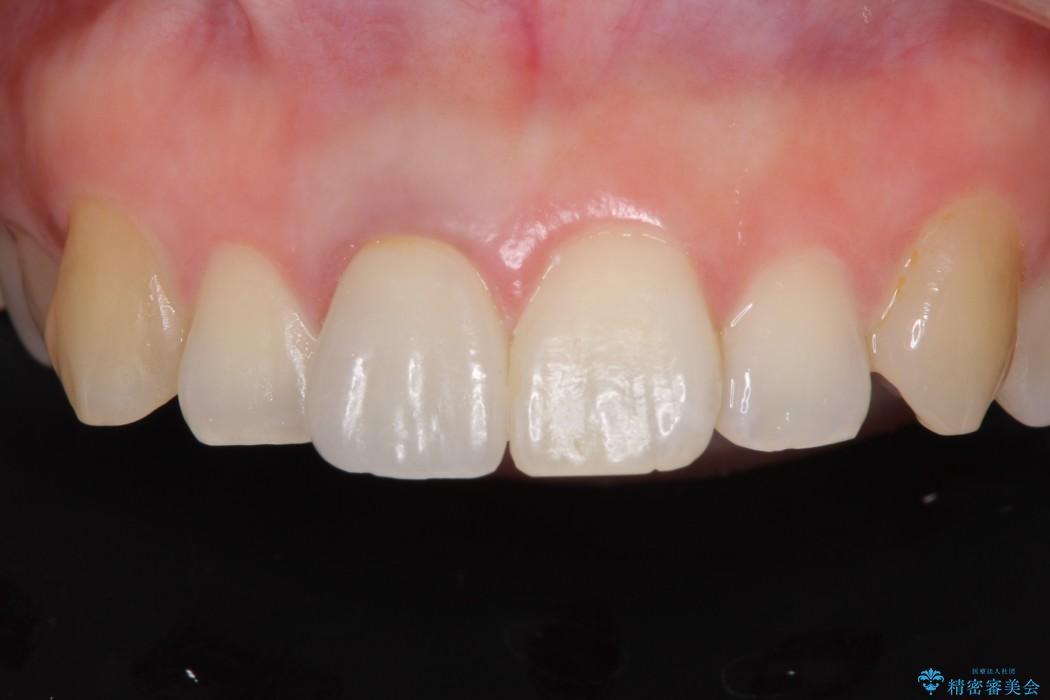 穴が空いて変色した前歯 根管治療とオールセラミッククラウン アフター