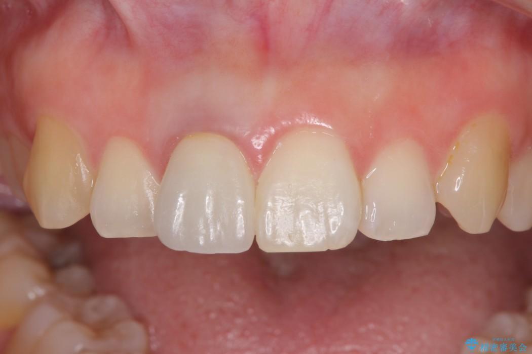穴が空いて変色した前歯 根管治療とオールセラミッククラウン 治療後画像