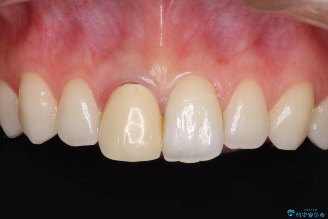 保険診療の前歯が変色してしまった オールセラミッククラウンで自然な前歯に 治療前