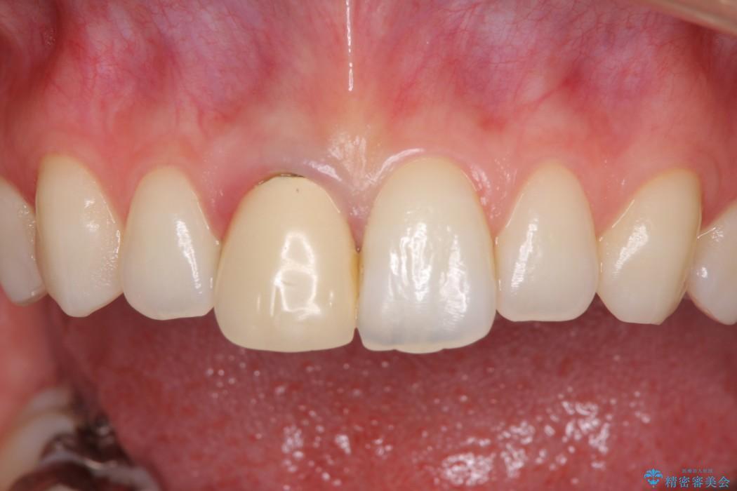 保険診療の前歯が変色してしまった オールセラミッククラウンで自然な前歯に 治療前画像