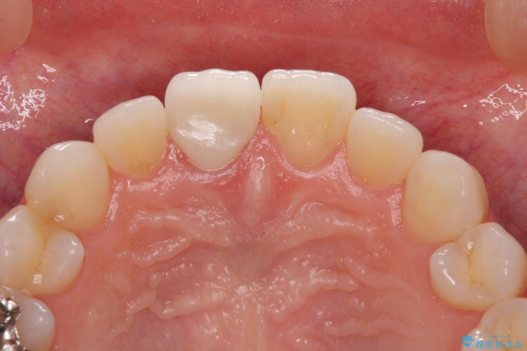 保険診療の前歯が変色してしまった オールセラミッククラウンで自然な前歯に 治療後画像