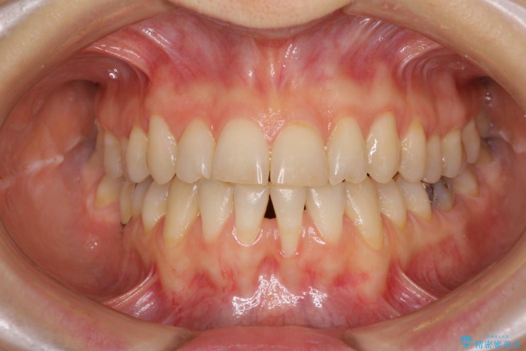 下顎前歯の歯肉退縮 歯肉移植による根面被覆 治療前画像