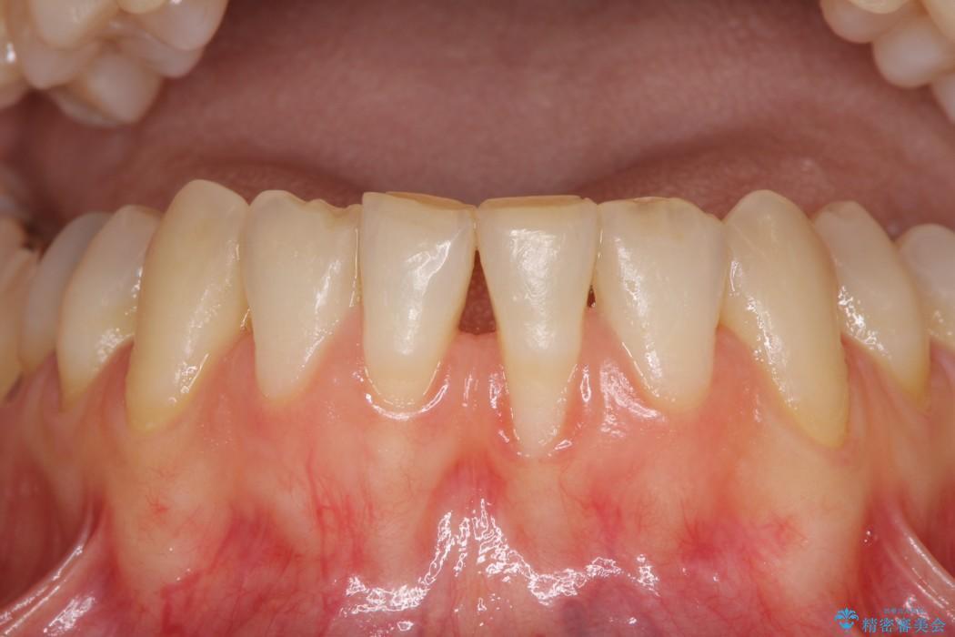 下顎前歯の歯肉退縮 歯肉移植による根面被覆 治療前