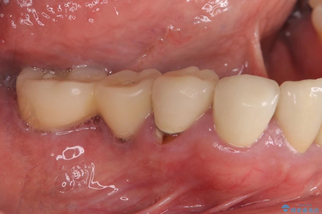 汚れがたまって気になる 歯ぐきとの境目から虫歯 治療前