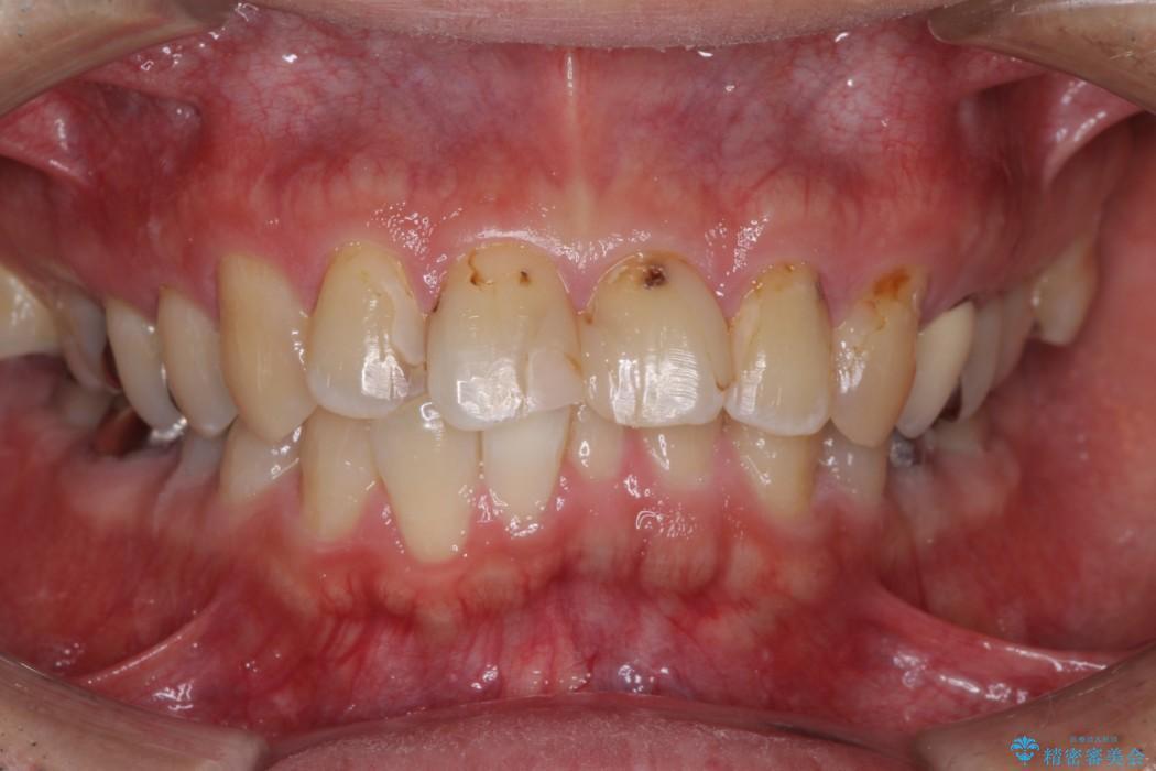 なるべく費用おさえて、綺麗な前歯にしたい 治療前画像