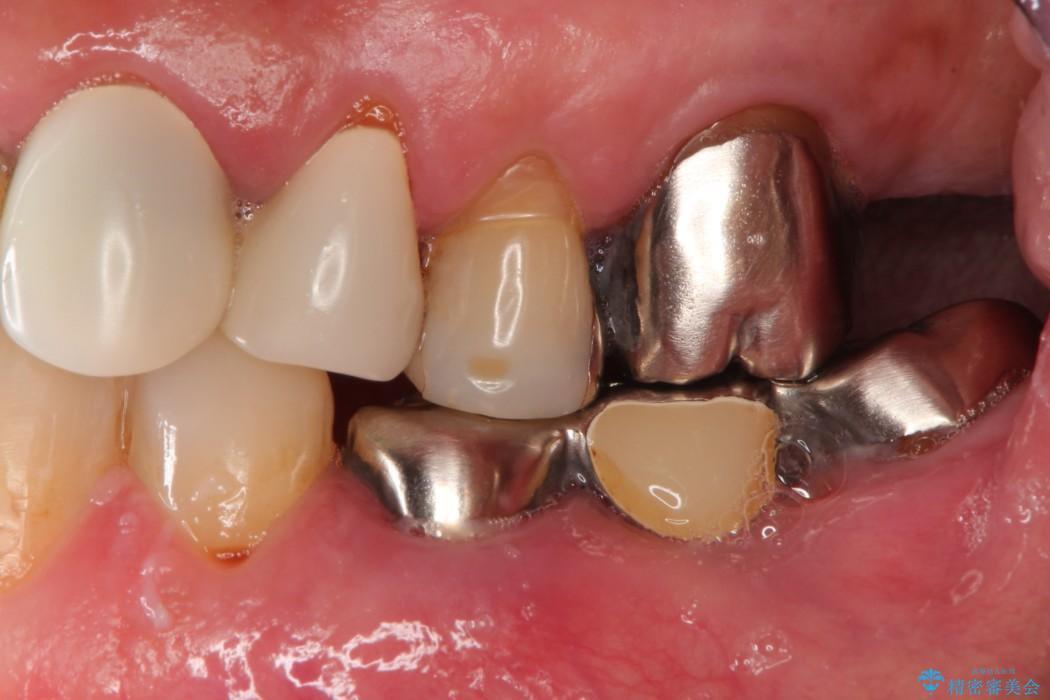 部分矯正による咬合平面の改善 ノンクラスプデンチャーとオールセラミッククラウン 治療前
