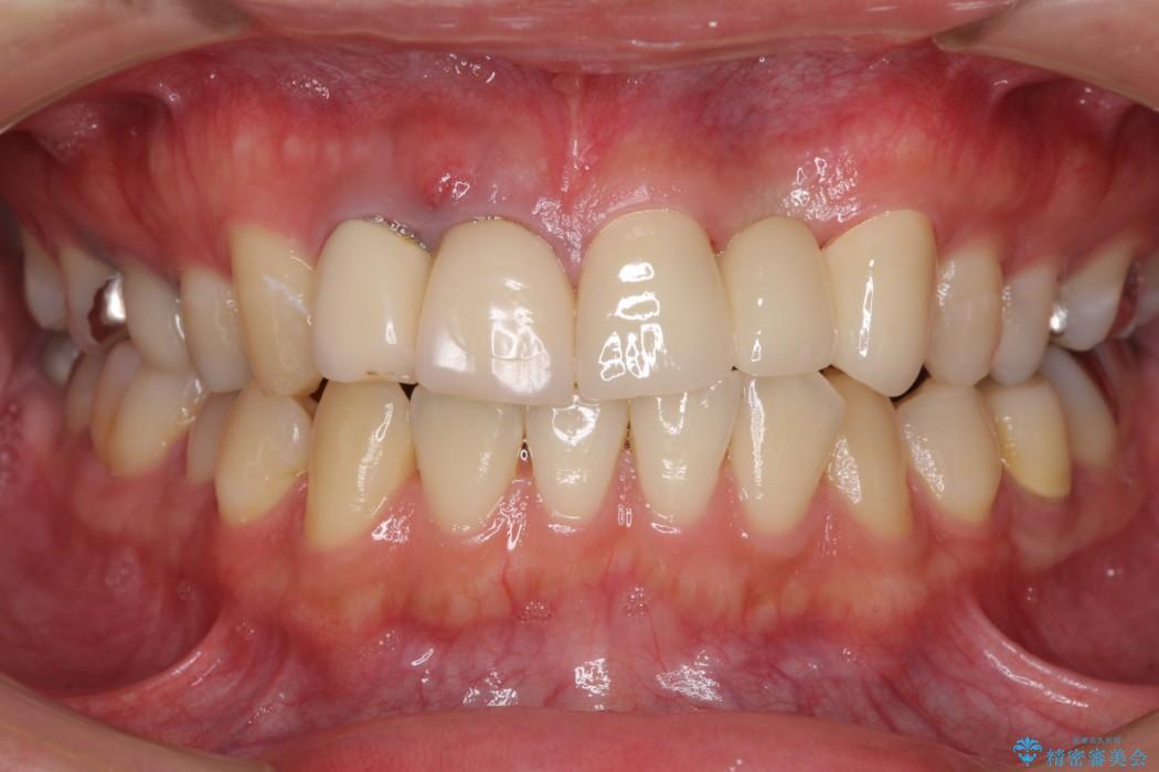 転勤する前に前歯をきれいにしたい 抜歯とセラミック治療 アフター