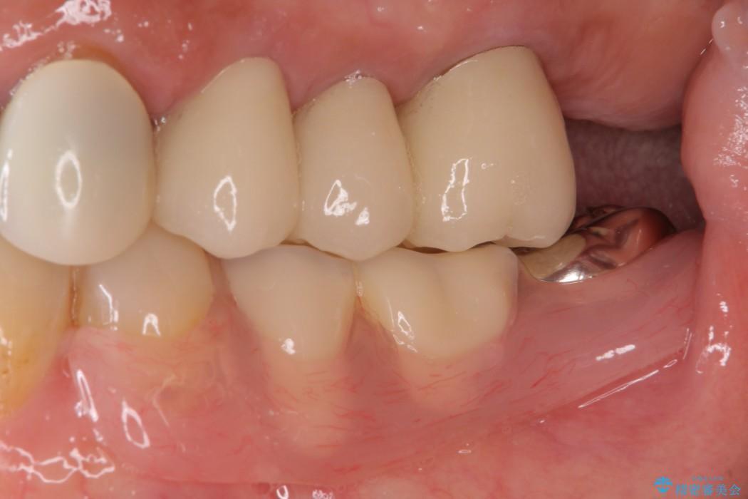 部分矯正による咬合平面の改善 ノンクラスプデンチャーとオールセラミッククラウン アフター