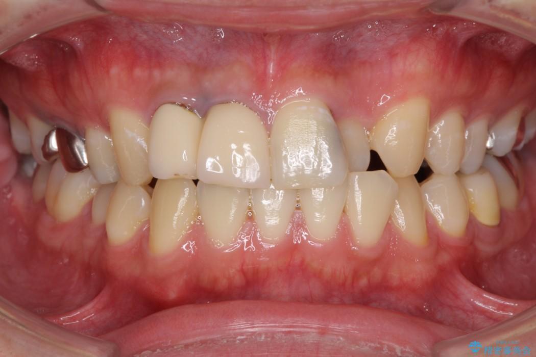 転勤する前に前歯をきれいにしたい 抜歯とセラミック治療 ビフォー