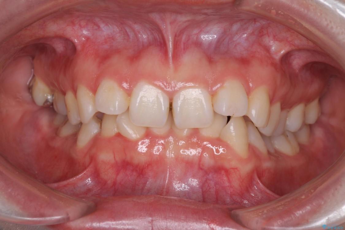 歯並びを気にせず笑いたい インビザラインによる矯正治療 ビフォー