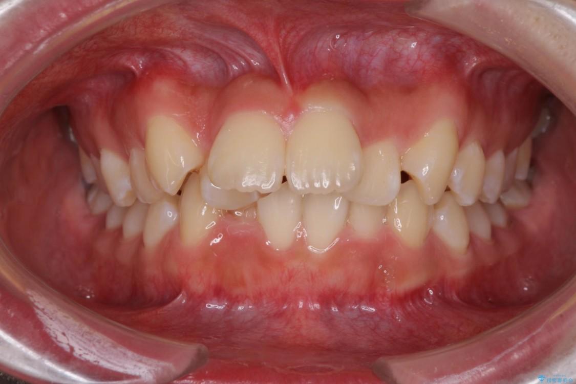 前歯の出っ歯とでこぼこ 目立たないワイヤー装置で抜歯矯正 ビフォー
