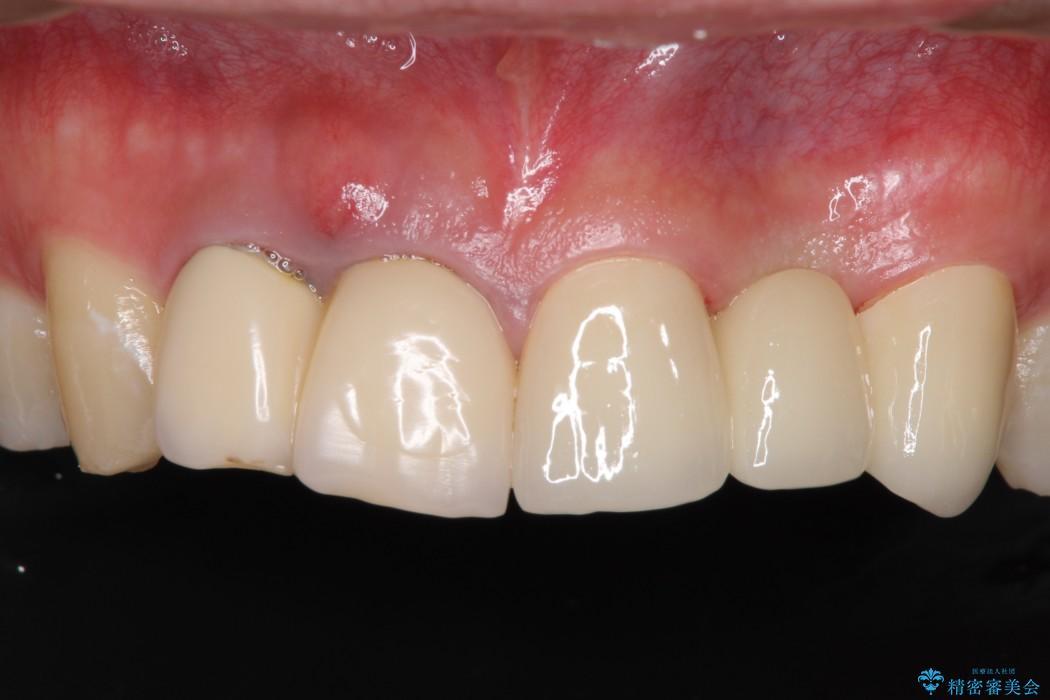 急いで前歯を治したい 抜歯とセラミックブリッジ アフター