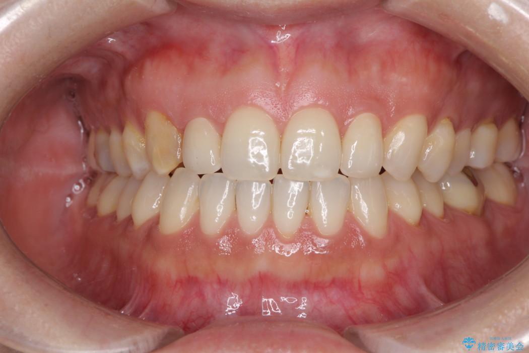 前歯の歯並びと小さい歯を改善 インビザライン矯正とオールセラミッククラウン アフター