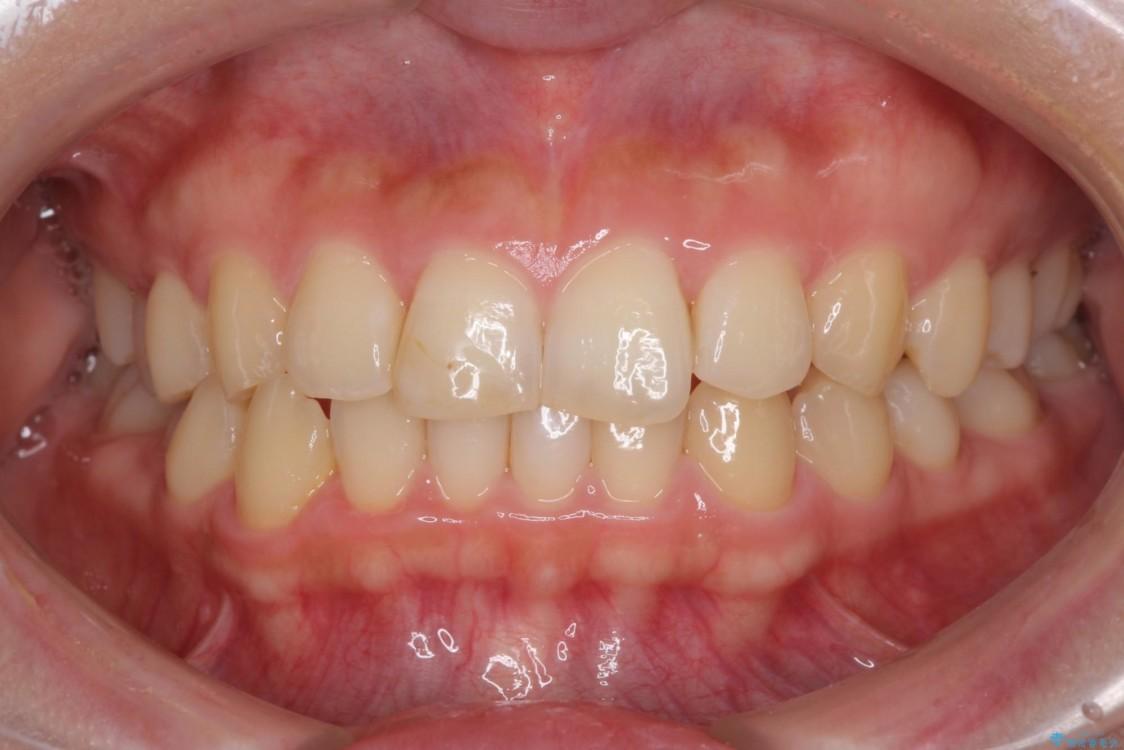 前歯のすきっぱを治したい マウスピース(ASOアライナー)による矯正治療 アフター