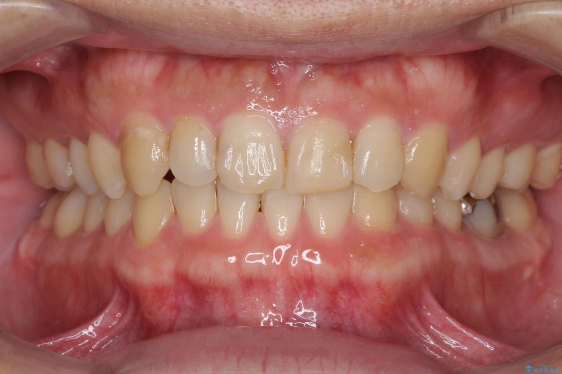 反対咬合で咬みにくい‼ インビザラインによる矯正治療 アフター
