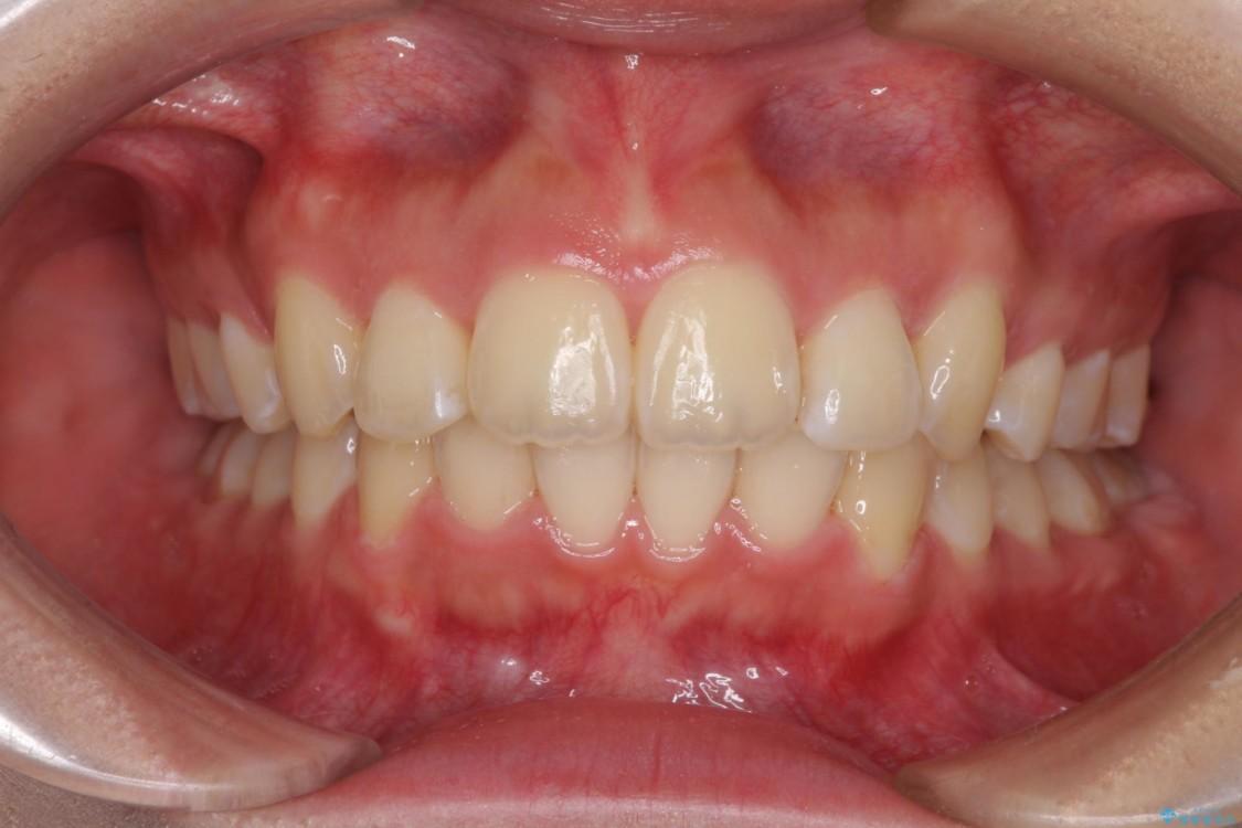 前歯の出っ歯とでこぼこ 目立たないワイヤー装置で抜歯矯正 アフター