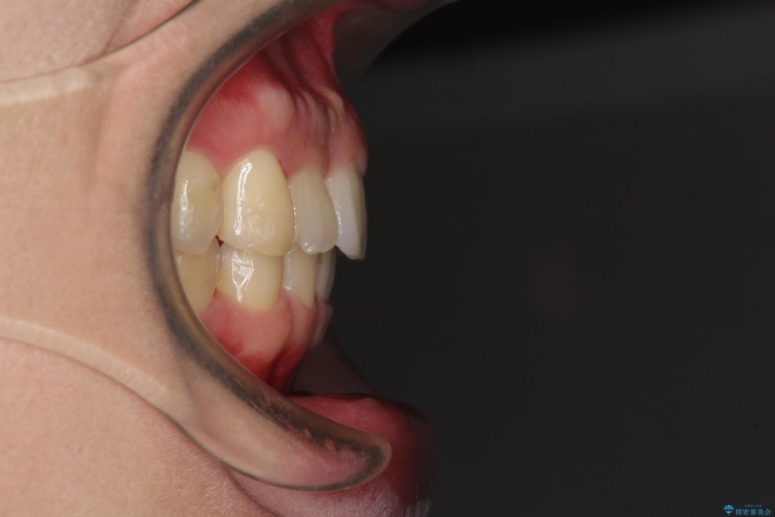 気になる出っ歯をマウスピースで改善 インビザラインによる矯正治療 アフター