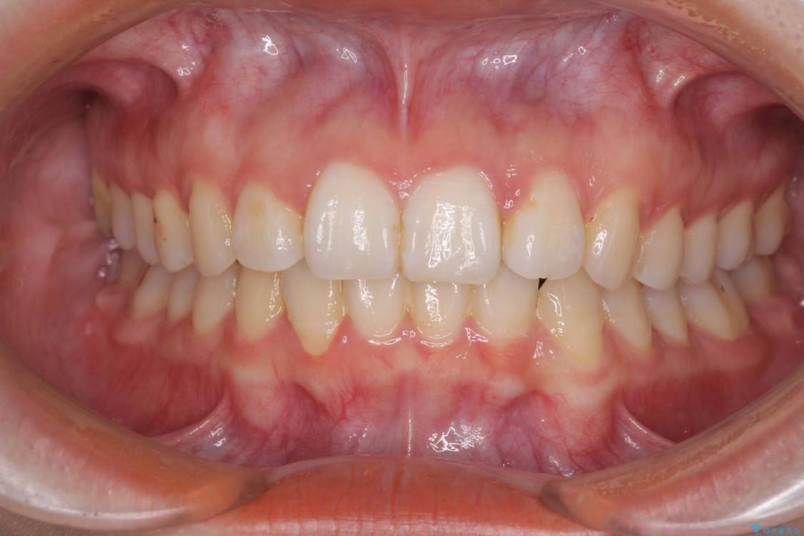 歯並びを気にせず笑いたい インビザラインによる矯正治療 アフター